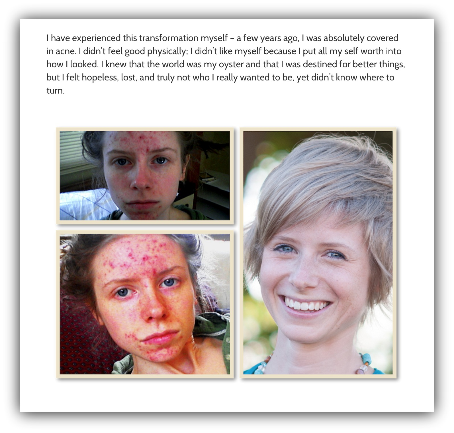 acne transformation before and after